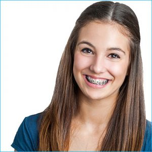 young teen girl with braces